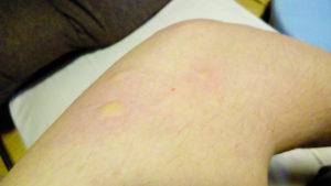 蚊に刺されたヒジ